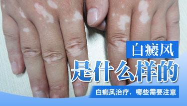 怎么治手部白斑效果最好