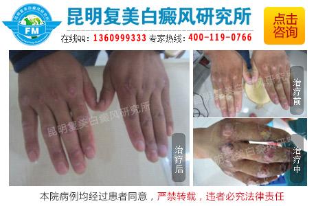 手部白癜风易出现的症状和原因