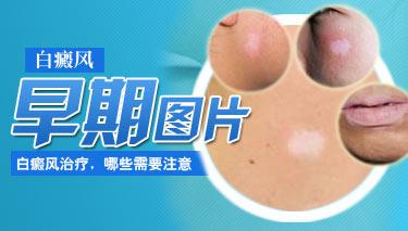 男性白癜风患者应该怎样护理皮肤?